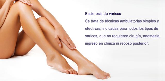 Eliminación de varices en Clínica BodyCare Valencia