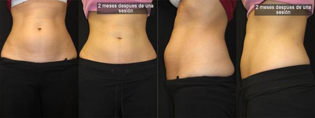 Antes y después de realizar una Criolipolisis
