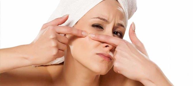 Tipos de acné y tratamientos contra las imperfecciones