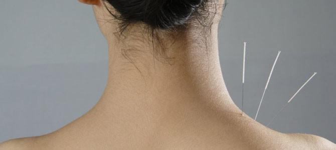 La acupuntura contra las contracturas musculares