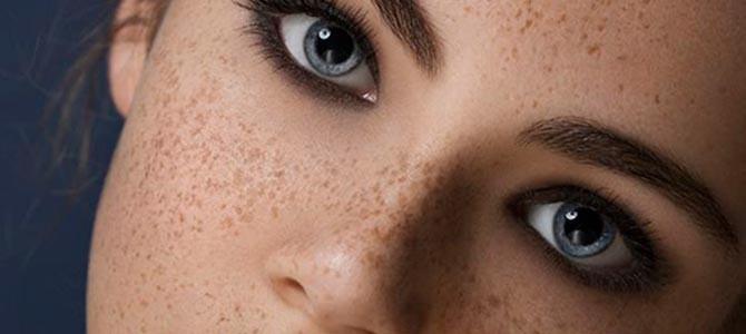 Pecas: guía para cuidar tu piel si tienes pecas