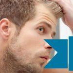 Microinjertos para combatir la calvicie