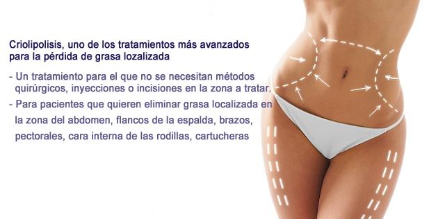 criolipolisis en clinica bodycare Valencia