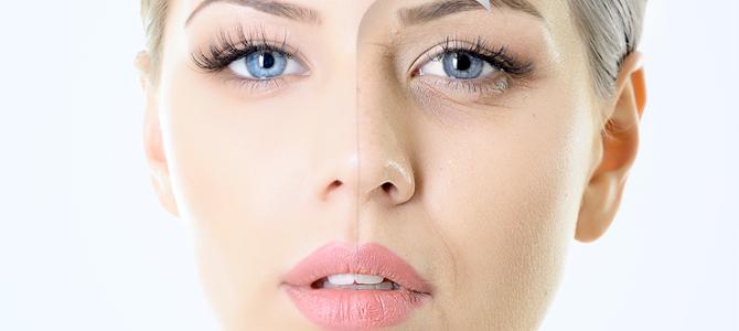 Combatir el envejecimiento con los rellenos faciales de ácido hialurónico