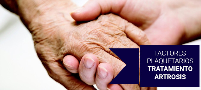 Artrosis: qué es y cómo combatirla con factores plaquetarios