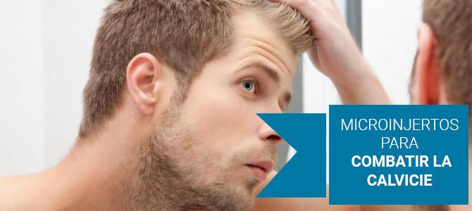 Alopecia: microinjertos para combatir la calvicie