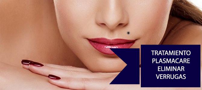 Tratamiento Plasmacare para eliminar verrugas