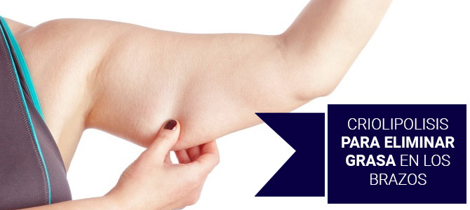 Tratamiento criolipolisis para eliminar la grasa localizada en los brazos