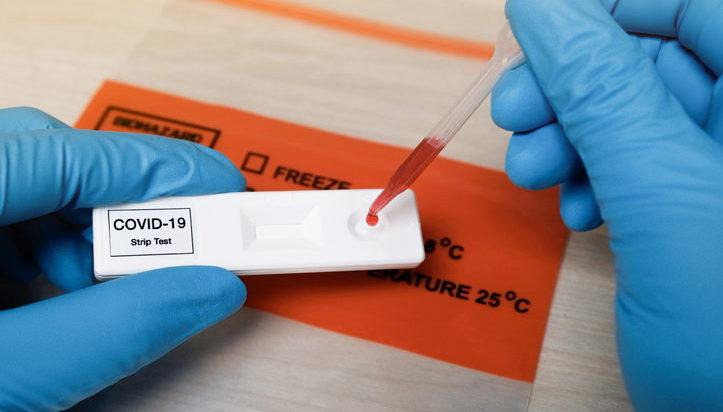 test serológico covid-19 Bodycare